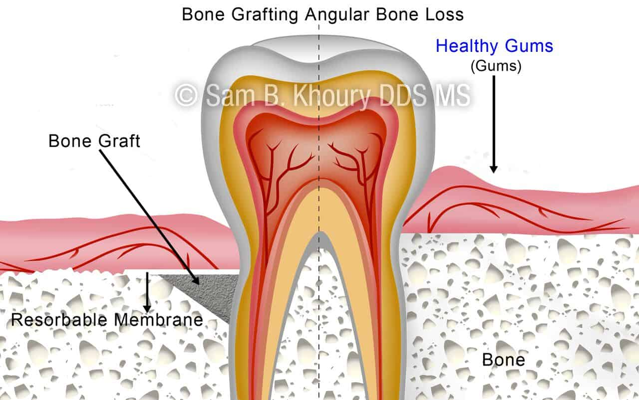 hight resolution of angular bone loss after preview
