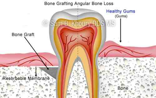 small resolution of angular bone loss after preview