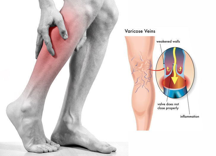 Best Exercises For Increasing Blood Flow & Circulation To ...