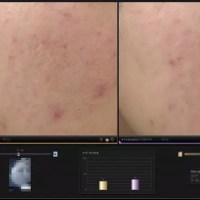 ニキビ跡治療の症例写真集