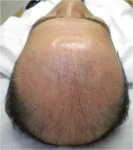 HARG療法 毛髪再生治療 施術前 8月22日