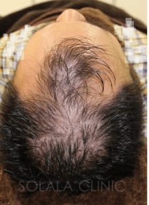 薄毛の治療前です。