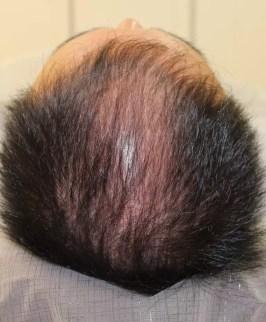 薄毛の発毛治療HARG療法 4ヶ月目