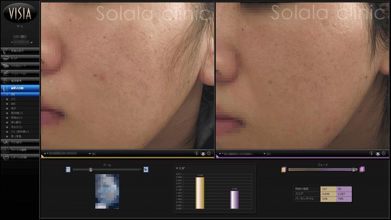 ニキビ跡治療 症例写真 左頬です。