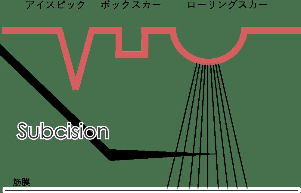 サブシジョンの図