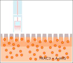 FRAC3-AMTS-small