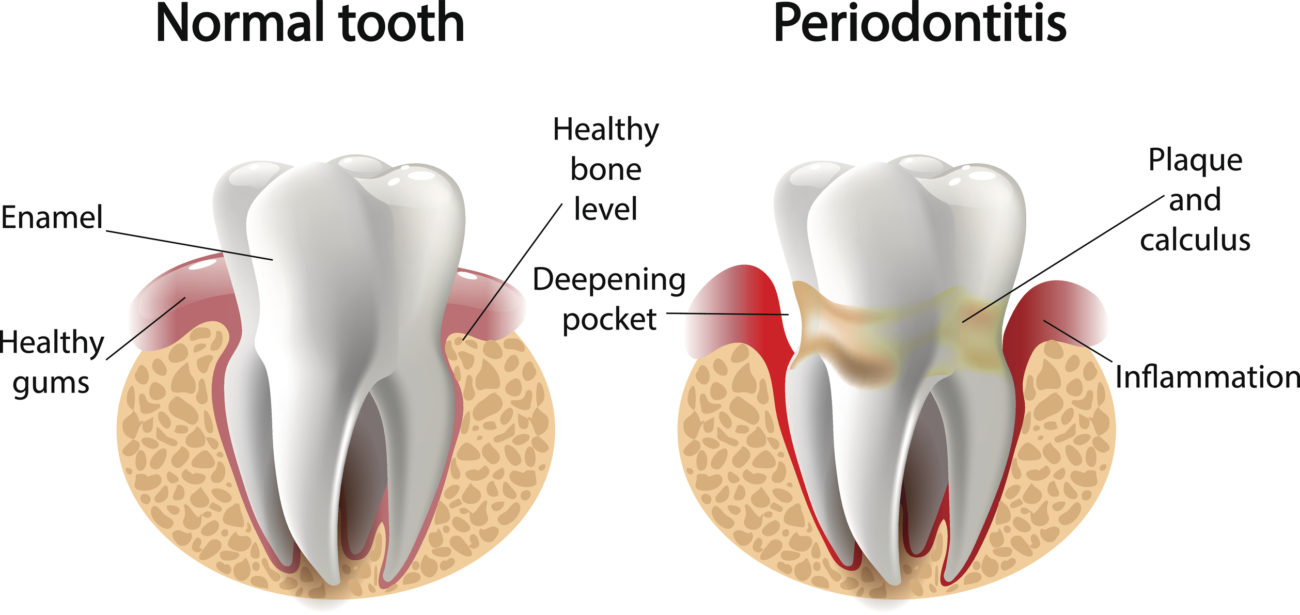 gum disease and tooth loss