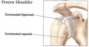 Recalcitrant & Frozen Shoulder   Dr Skedros Orthopaedics