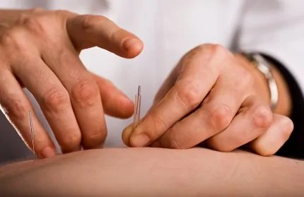 Acupuncture Needle Insertion