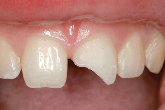 fractura in smalt Fractura dentară si dentina stomatologie ramnicu sarat drstate fractura dentară Fractura dentară, tipuri de fracturi, simptome și tratamente fractura in smalt si dentina stomatologie ramnicu sarat drstate