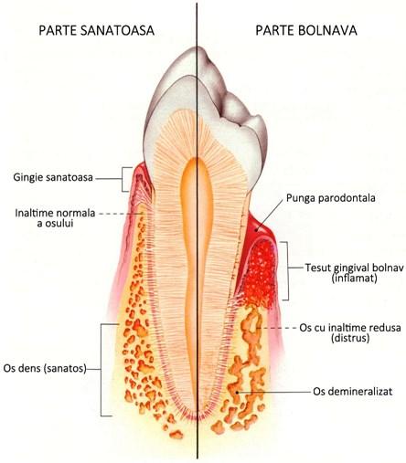 Boala parodontală boala parodontală Boala parodontală – Ce reprezintă? BOALA PARODONTALA DrState