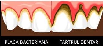 Boala parodontală boala parodontală Boala parodontală – Ce reprezintă? BOALA PARODONTALA