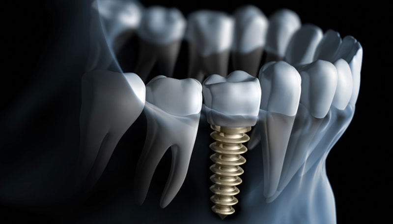 implantele dentare implantele dentare Implantele dentare – etape de tratament implantele dentare