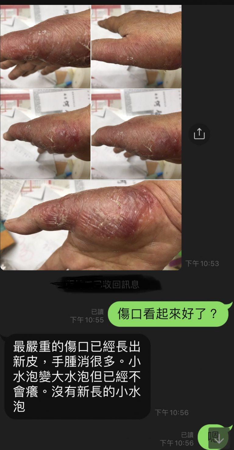 汗皰疹~疑似過度清潔手部過敏皮膚炎 - Dr.Syuan宣草集中醫診所|邱柏瑄中醫師