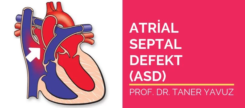 Atrial septal defekt ASD