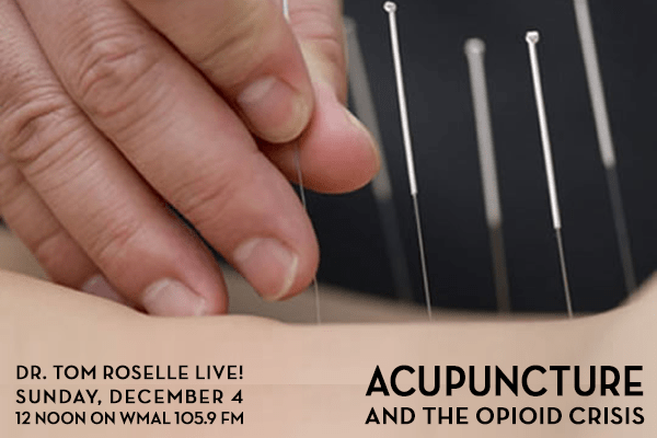 acupuncture-opioid-v2