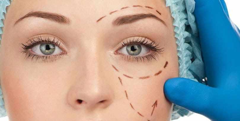 Blefaroplastia, una de las cirugías más demandadas.