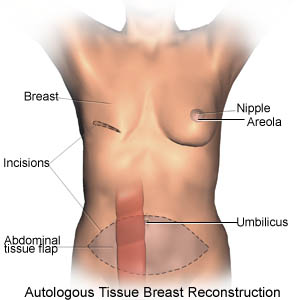 Delayed Post-Mastectomy Autologous Tissue Breast ...