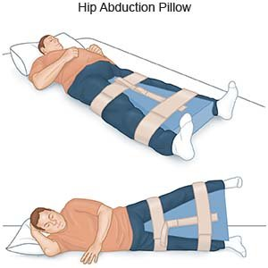 Hip Abduction Pillow  What You Need to Know