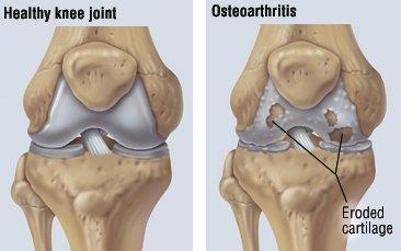 pacienții cu osteoartrita pierdere în greutate)