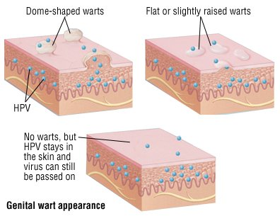 Can A Pap Smear Show If You Have Genital Warts Or Genital Herpes? 3