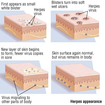 How Long Before Herpes Symptoms Are Shown? 1