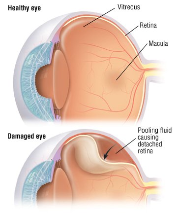 Detached Retina Guide Causes Symptoms And Treatment Options