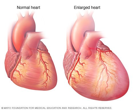 Heart failure Disease Reference Guide  Drugscom
