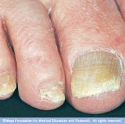 nail fungus disease reference guide