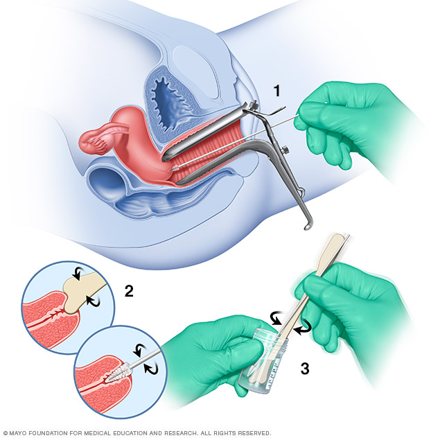 Pap smear  Drugscom