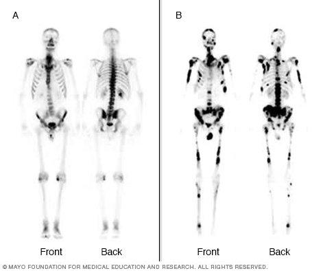 Bone scan  Drugscom