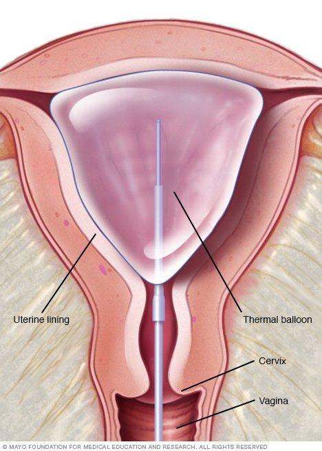 Endometrial ablation - Drugs.com