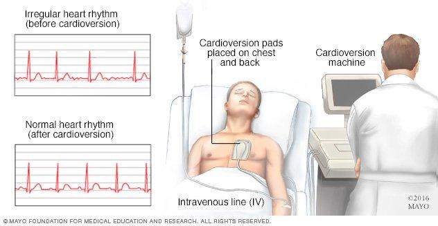 Cardioversion - Drugs.com