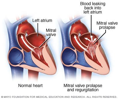 Mitral valve prolapse Disease Reference Guide - Drugs.com