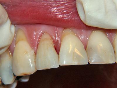 Trattamento n° 19 – Faccetta in ceramica incisivo laterale destro