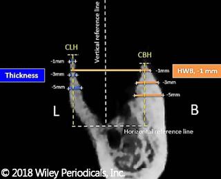 Preservazione della cresta in alveoli di molari estratti in seguito a malattia parodontale