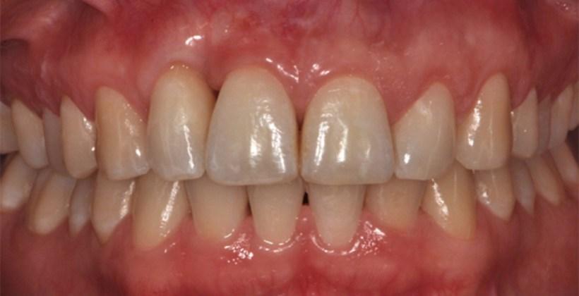 Trattamento chirurgico per grave caso di parodontite cronica