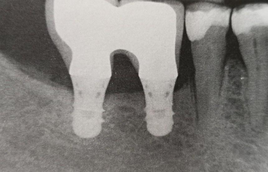 Impianti corti nei settori posteriori della mandibola senza rigenerazione ossea