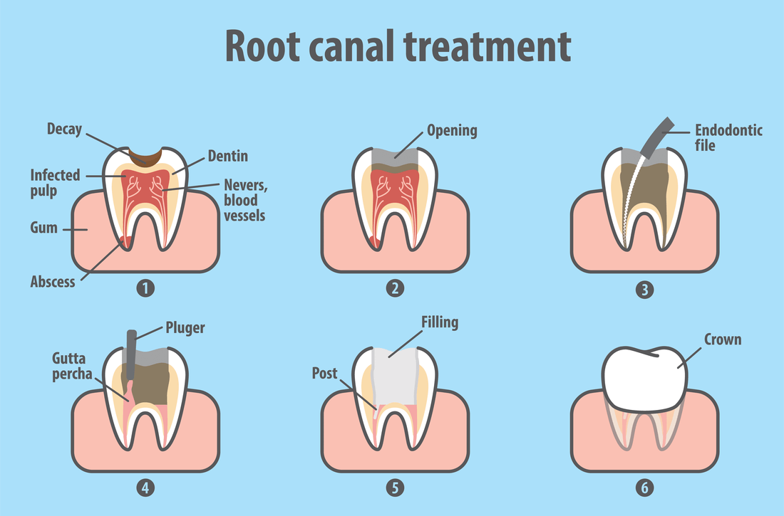 Root Canals - Webb Family Dentistry