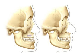 Cranial Implant Boston. MA | Dr. Michael J. Yaremchuk. Plastic Surgeon