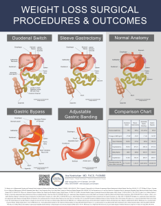 By dr hess using  percentage based method for constructing the intestinal limbs offers most inidualized and customizable weight loss surgery also laparoscopic duodenal switch dssurgery rh