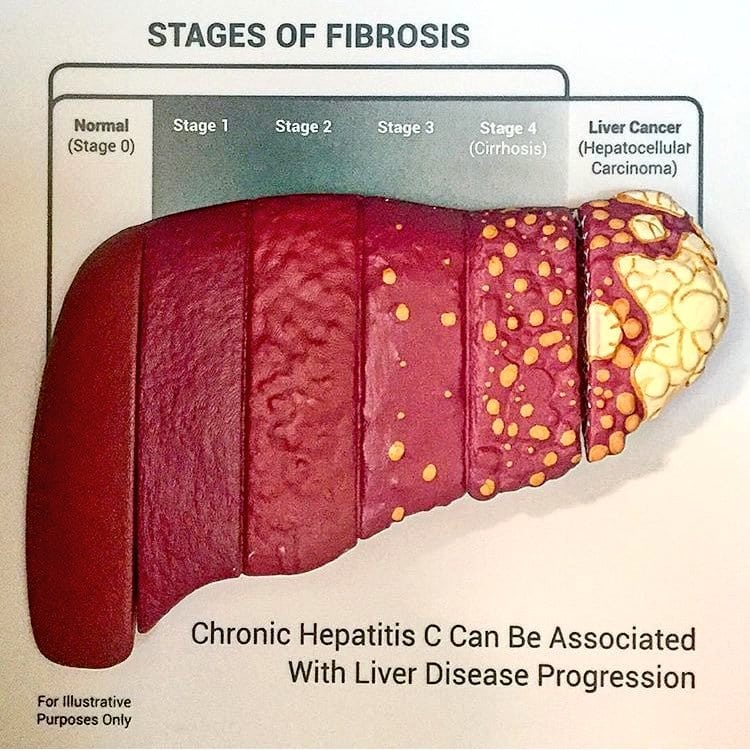 liver fibrosis Archives - DSSurgery