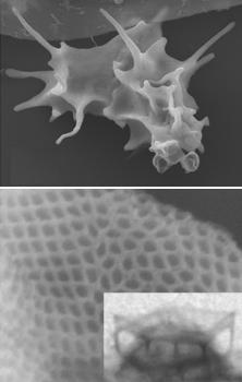 Amoeba with scales