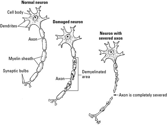 Immune and Nervous Systems Roles in Multiple Sclerosis