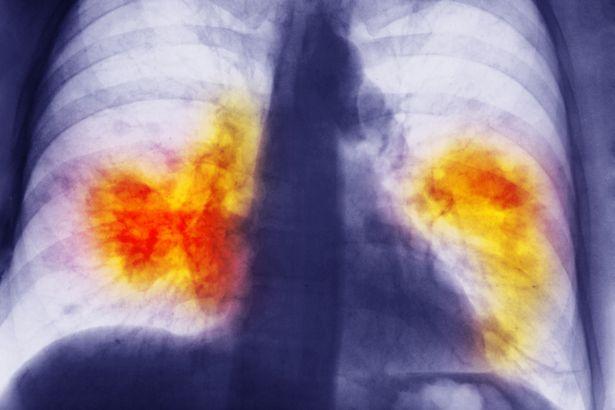 lung-disease