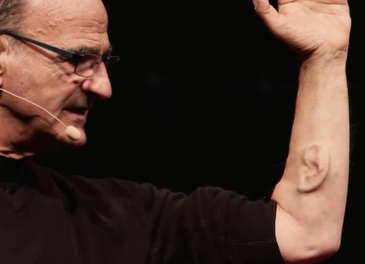 news-stelarc-ear-on-arm