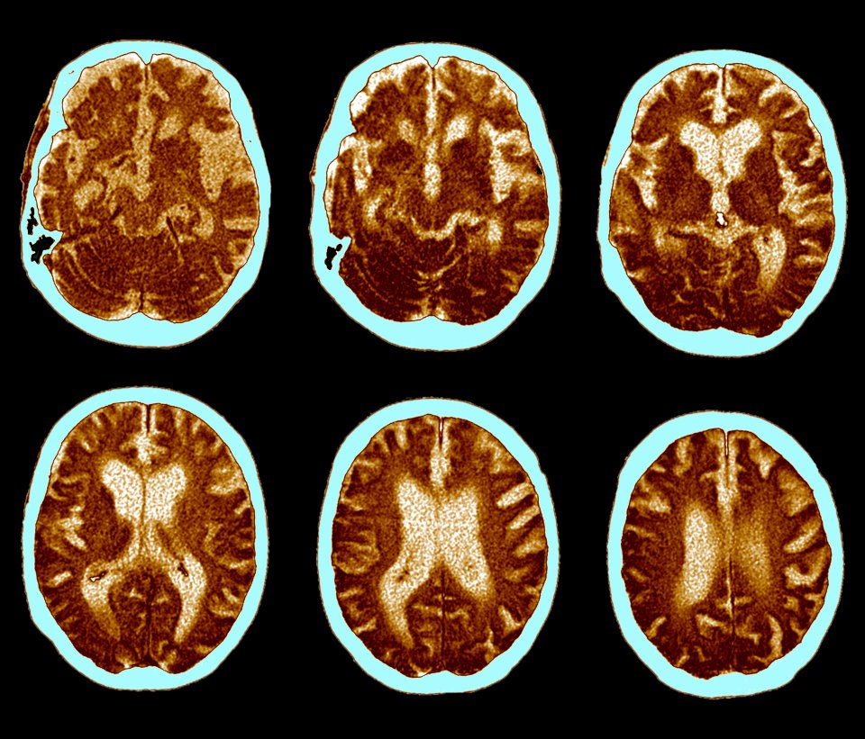 CAT scan of brain, Alzheimer's disease