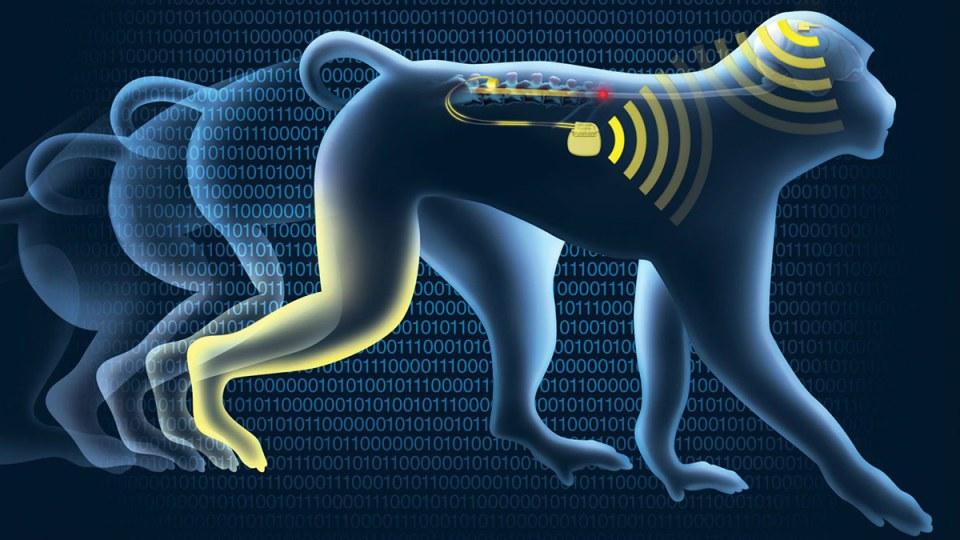 brain-spine-interface