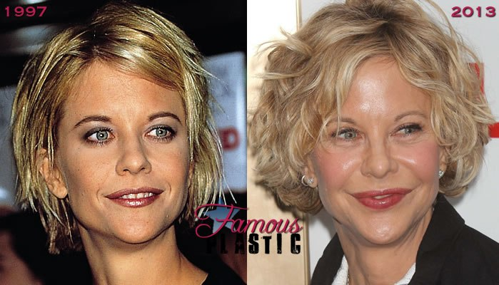 8 Celebrity Face Lifts Gone Wrong Before And After