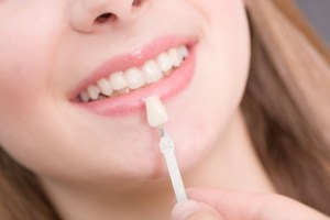 Dental Veneers Its Description Procedure Pros And Cons